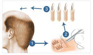 FUE Haartransplanation - FUE Methode