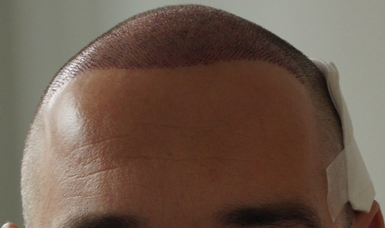 Nachher Haartransplanation