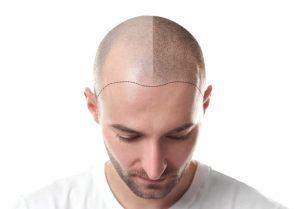 Haartransplantation bei Geheimratsecken - mit hoher Stirn
