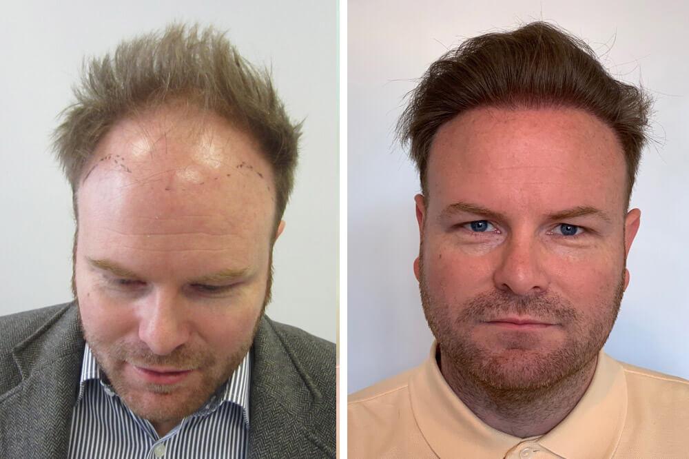 FUE hajbeültetés 1-2 napos műtéttel