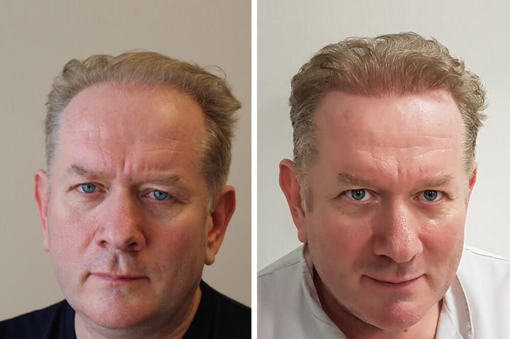 Hajátültetés Hair Palace