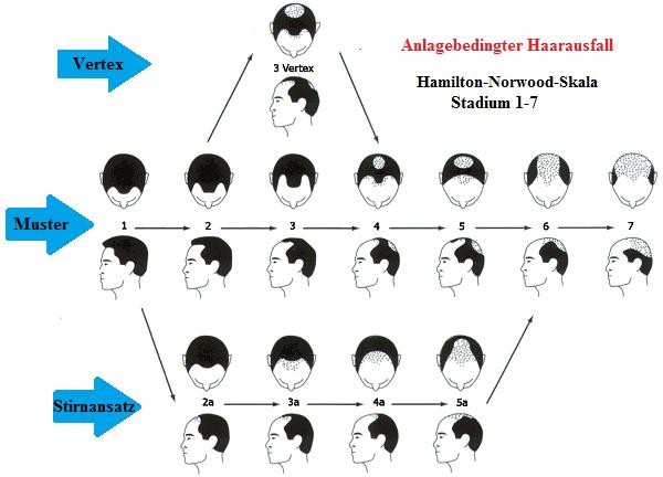 Hamilton-Norwood Schema / Skala