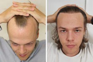 Haartransplantation Ergebnisse 6000 Haare - 3000 grafts