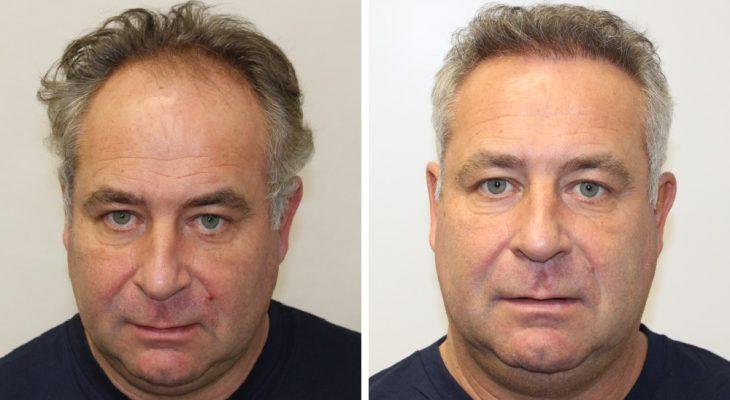 Haartransplantation vorher nachher bilder