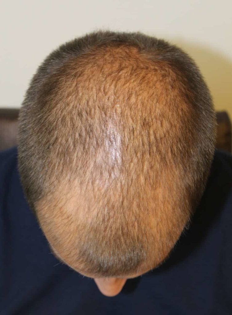 Haarverdichtung mit FUE Haartransplantation