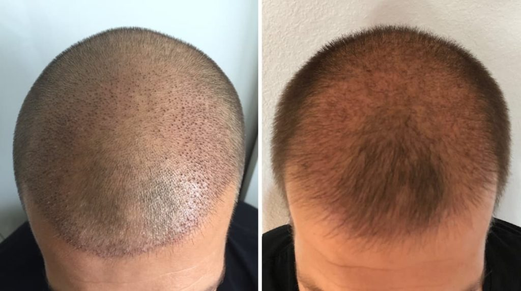 Sams implantierter Bereich 1 und 3 Wochen nach der Haartransplantation