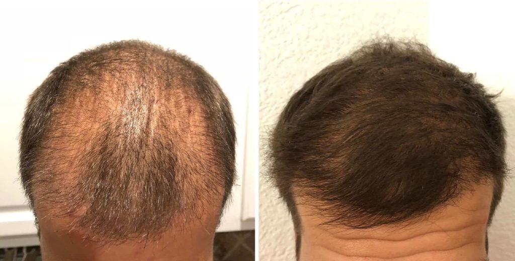 Der Frontbereich 3 und 6 Monate nach der FUE Haarverpflanzung