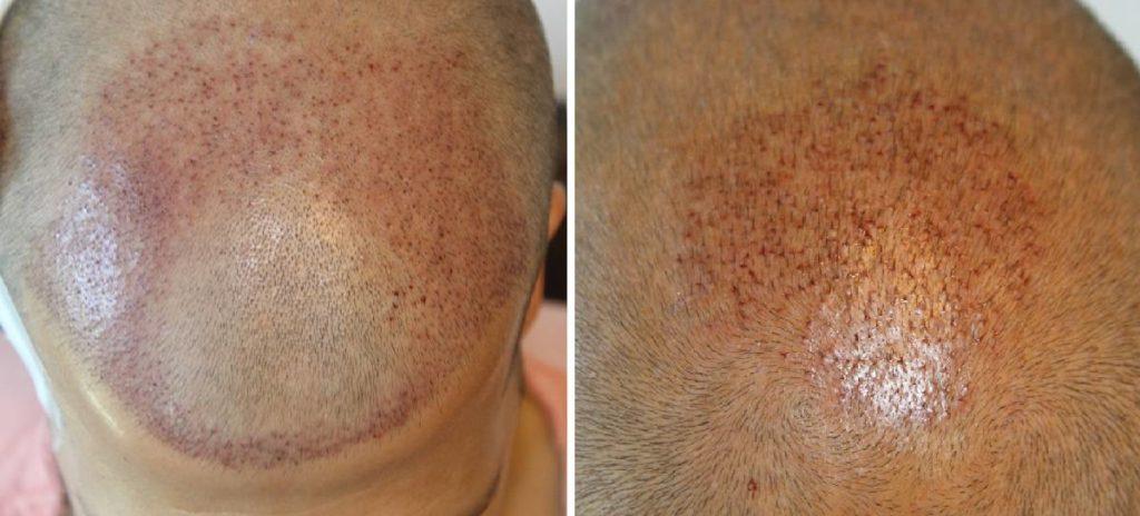 Implantierung die restlichen 1256 Haare in die Krone: