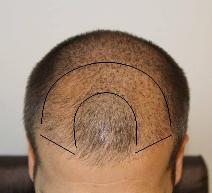 Verdichtung der Haare im Frontalbereich