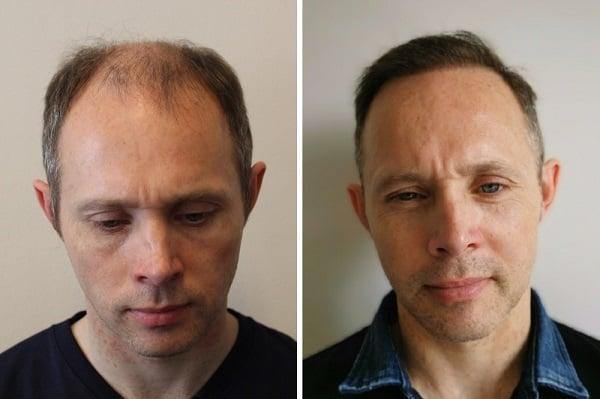 Toms zwei Haartransplantationssitzungen