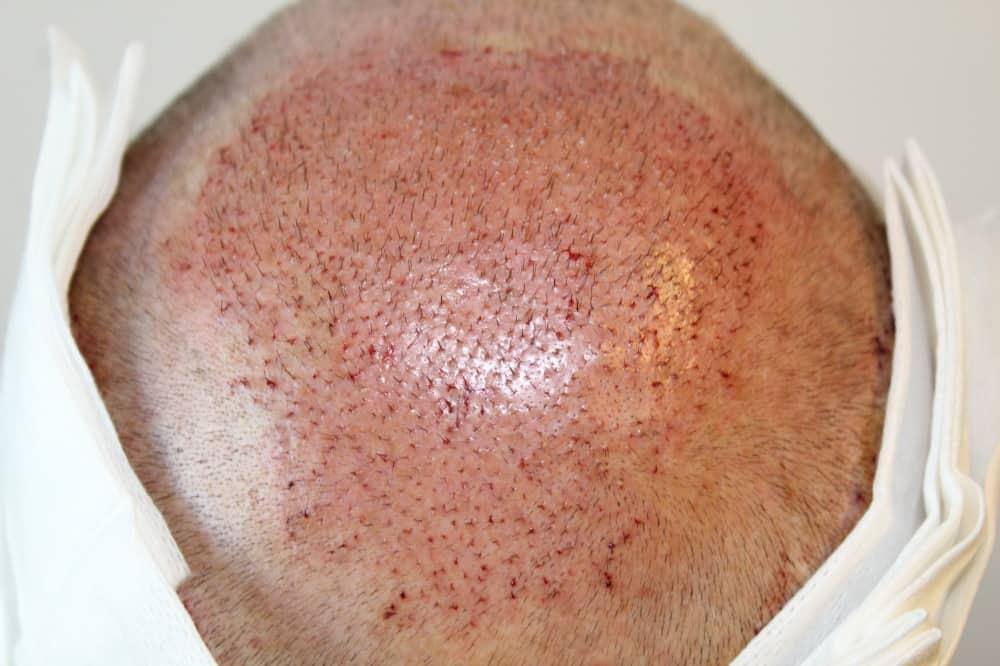 Zweite Haarimplantation